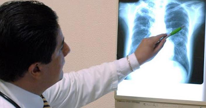 Incidencia y mortalidad por tuberculosis se redujo en México