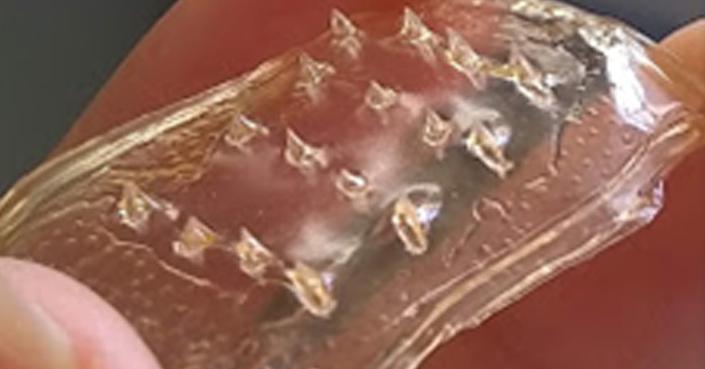 Crean en la UNAM sistema transdérmico con microagujas contra la osteoporosis